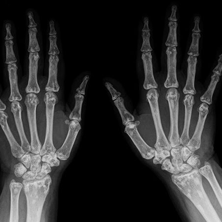 x-ray_hands_bw